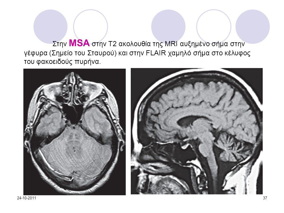 Στην MSA στην Τ2 ακολουθία της MRI αυξημένο σήμα στην γέφυρα (Σημείο του Σταυρού) και στην FLAIR χαμηλό σήμα στο κέλυφος του φακοειδούς πυρήνα.