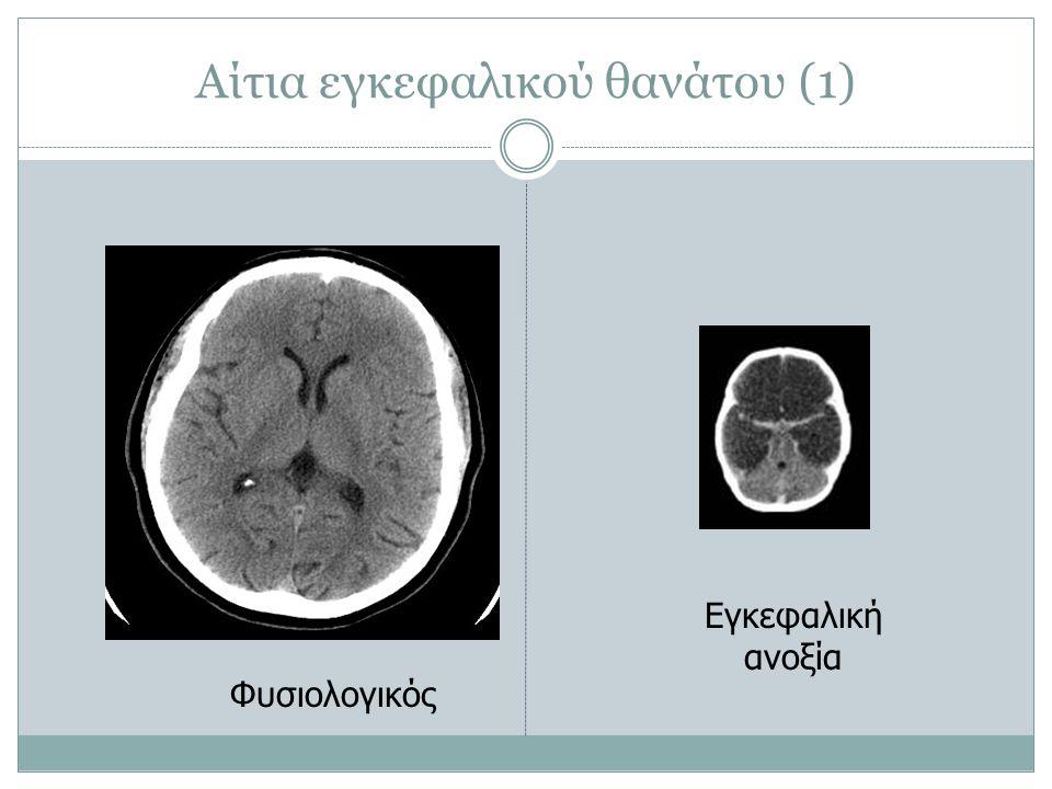 Αίτια εγκεφαλικού θανάτου (1)