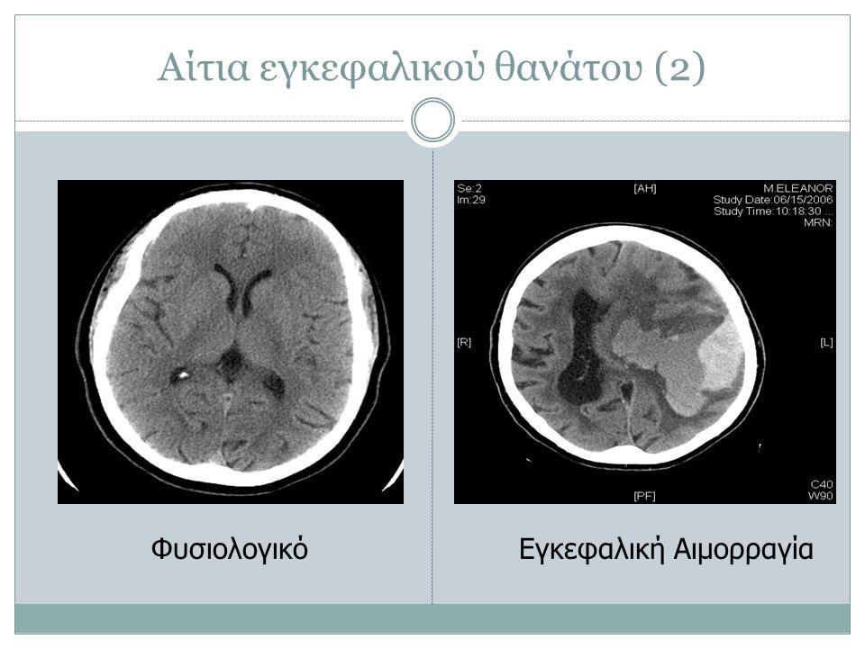 Αίτια εγκεφαλικού θανάτου (2)