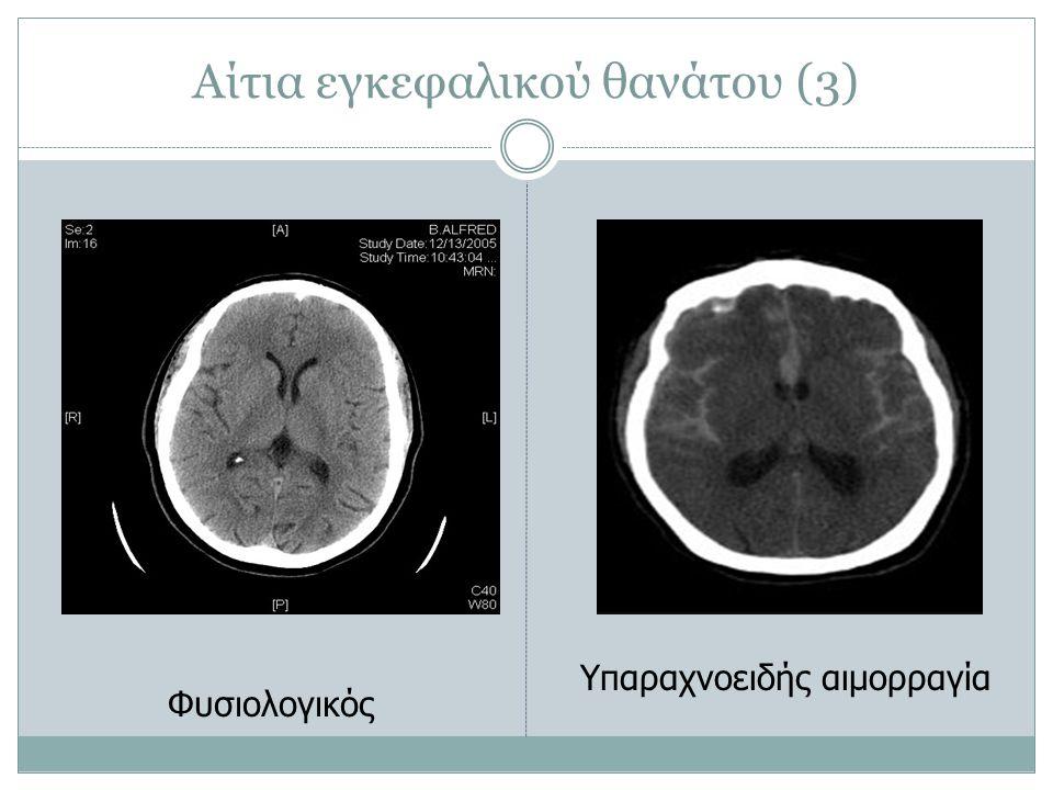 Αίτια εγκεφαλικού θανάτου (3)