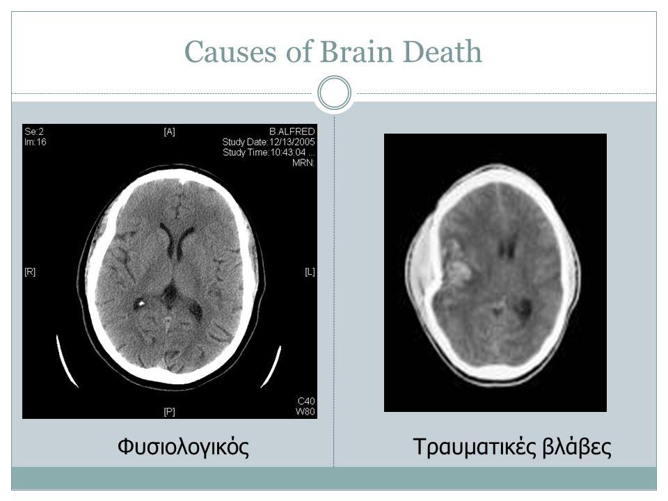 Causes of Brain Death Φυσιολογικός Τραυματικές βλάβες