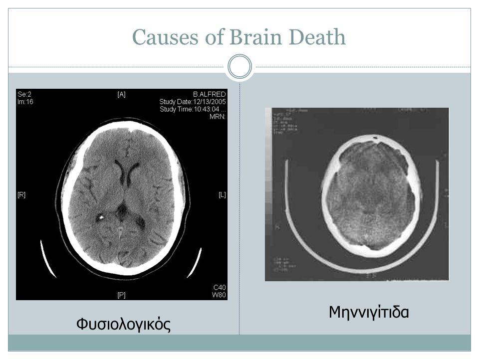Causes of Brain Death Μηννιγίτιδα Φυσιολογικός