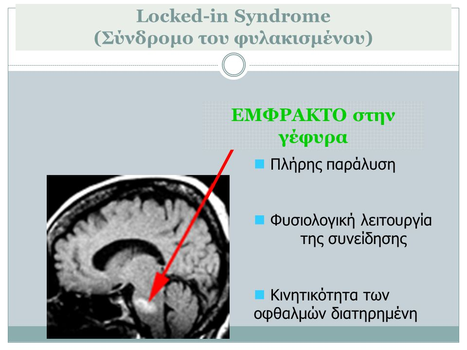 Locked-in Syndrome (Σύνδρομο του φυλακισμένου)