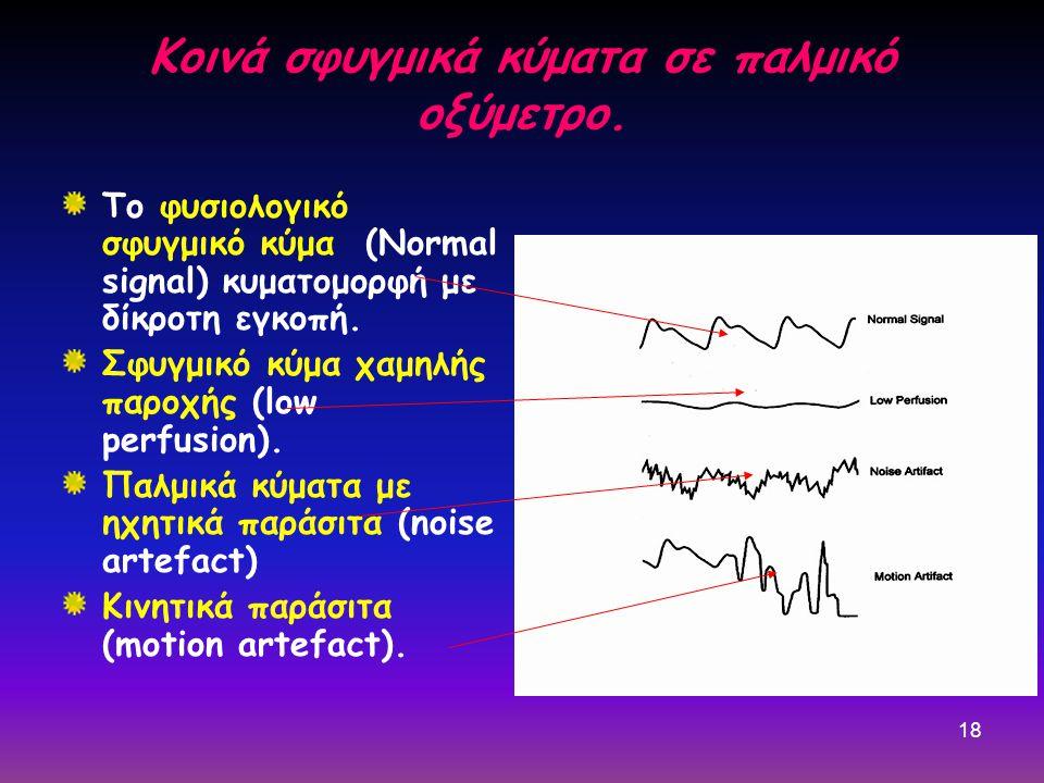 Κοινά σφυγμικά κύματα σε παλμικό οξύμετρο.