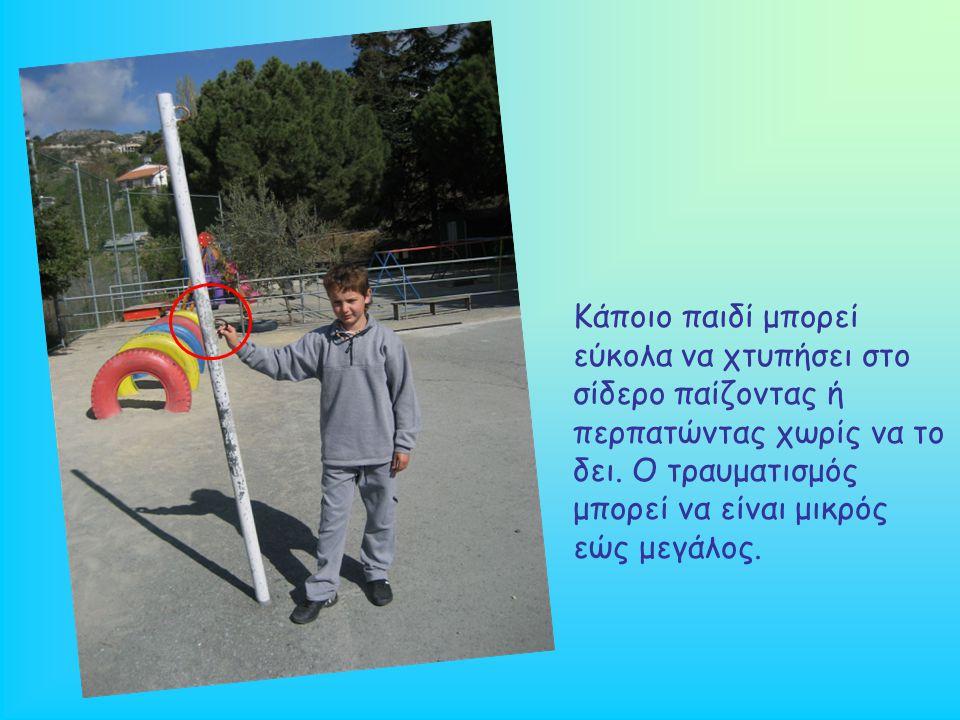 Κάποιο παιδί μπορεί εύκολα να χτυπήσει στο σίδερο παίζοντας ή περπατώντας χωρίς να το δει.