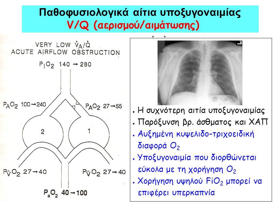 Παθοφυσιολογικά αίτια υποξυγοναιμίας V/Q (αερισμού/αιμάτωσης)