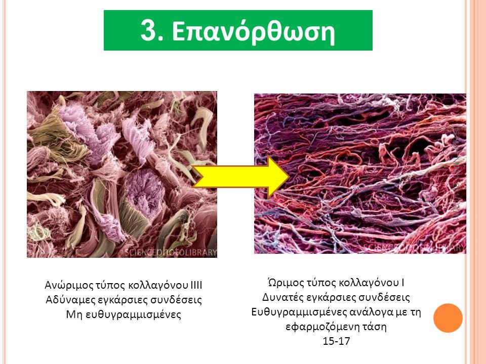 4. ΕπανόρθωσηΝε 3. Επανόρθωση Ώριμος τύπος κολλαγόνου Ι