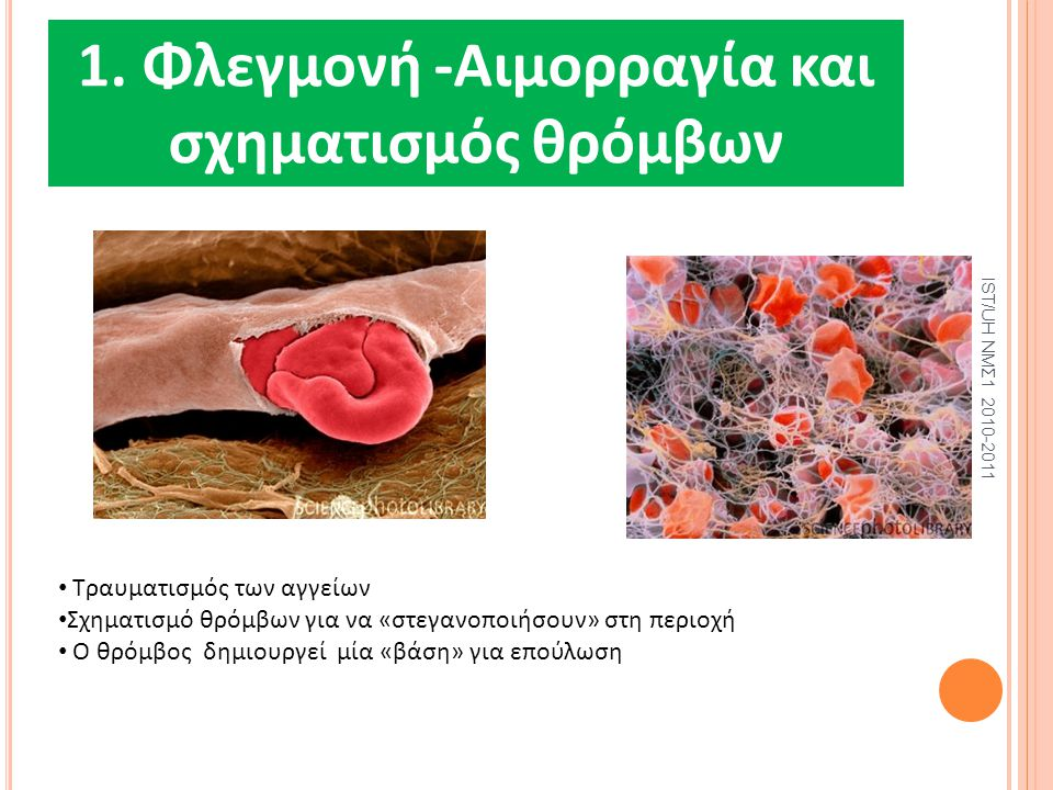 1. Φλεγμονή -Αιμορραγία και σχηματισμός θρόμβων