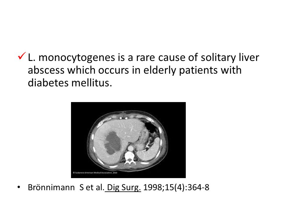 L. monocytogenes is a rare cause of solitary liver abscess which occurs in elderly patients with diabetes mellitus.