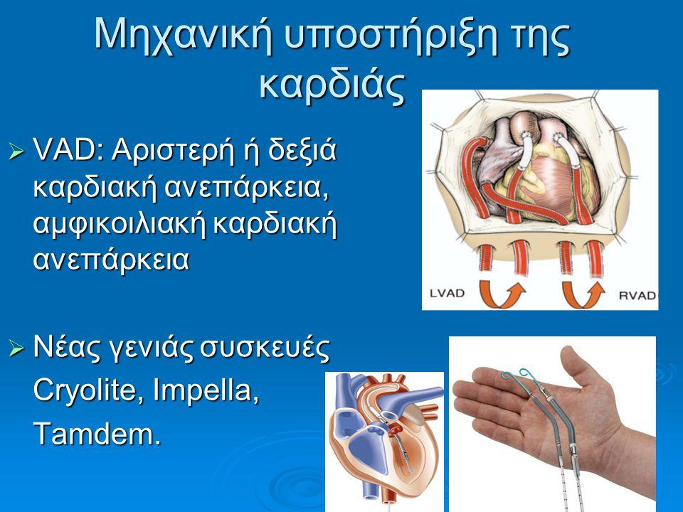 Μηχανική υποστήριξη της καρδιάς