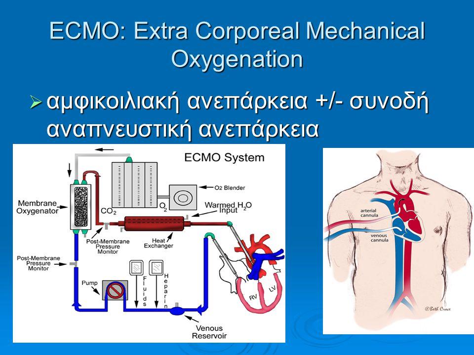 ECMO: Extra Corporeal Mechanical Oxygenation