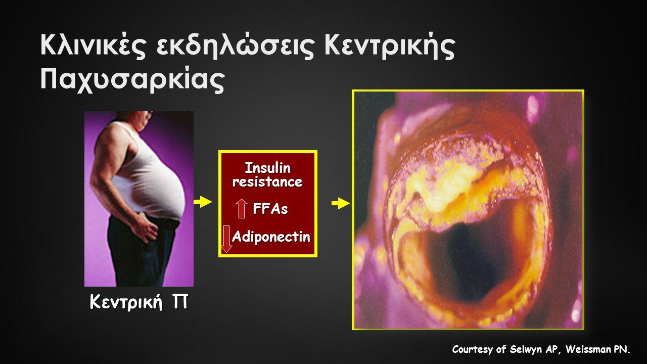 Κλινικές εκδηλώσεις Κεντρικής Παχυσαρκίας