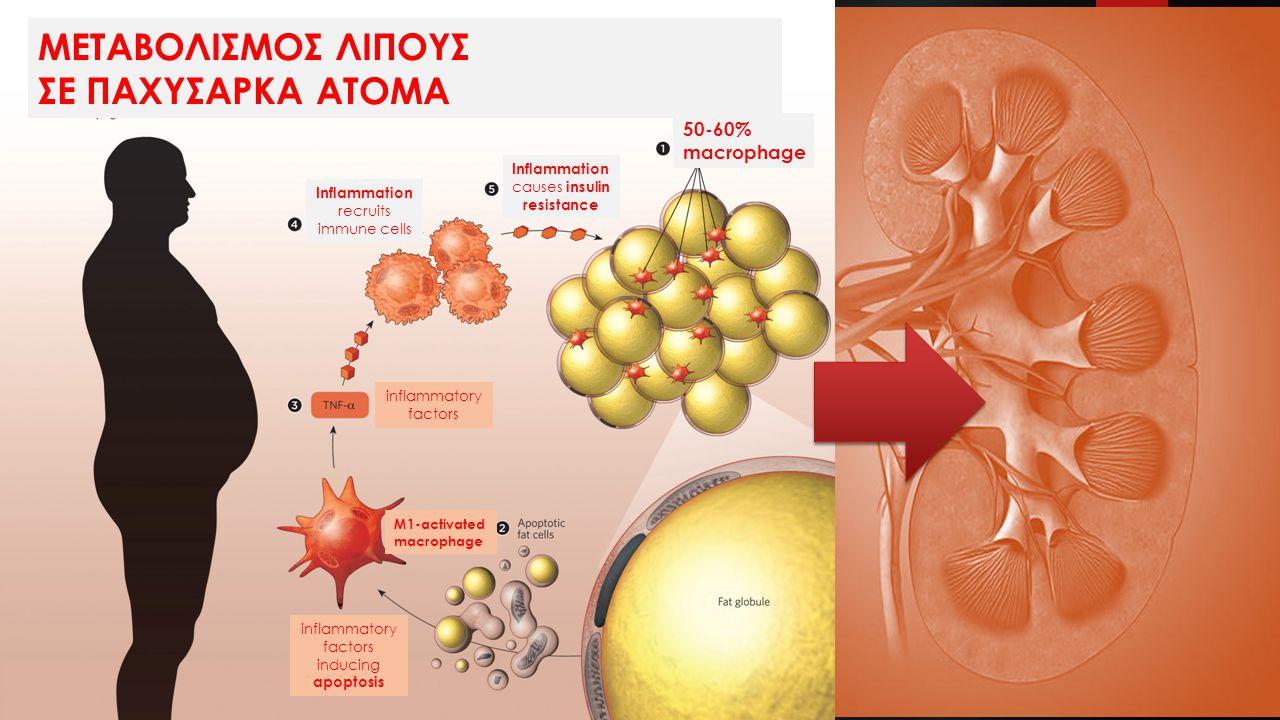 ΜΕΤΑΒΟΛΙΣΜΟΣ ΛΙΠΟΥΣ ΣΕ ΠΑΧΥΣΑΡΚΑ ΑΤΟΜΑ 50-60% macrophage