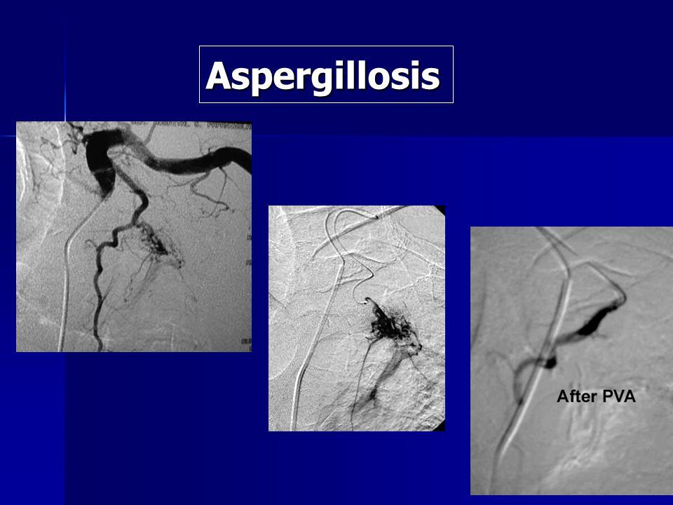 Aspergillosis