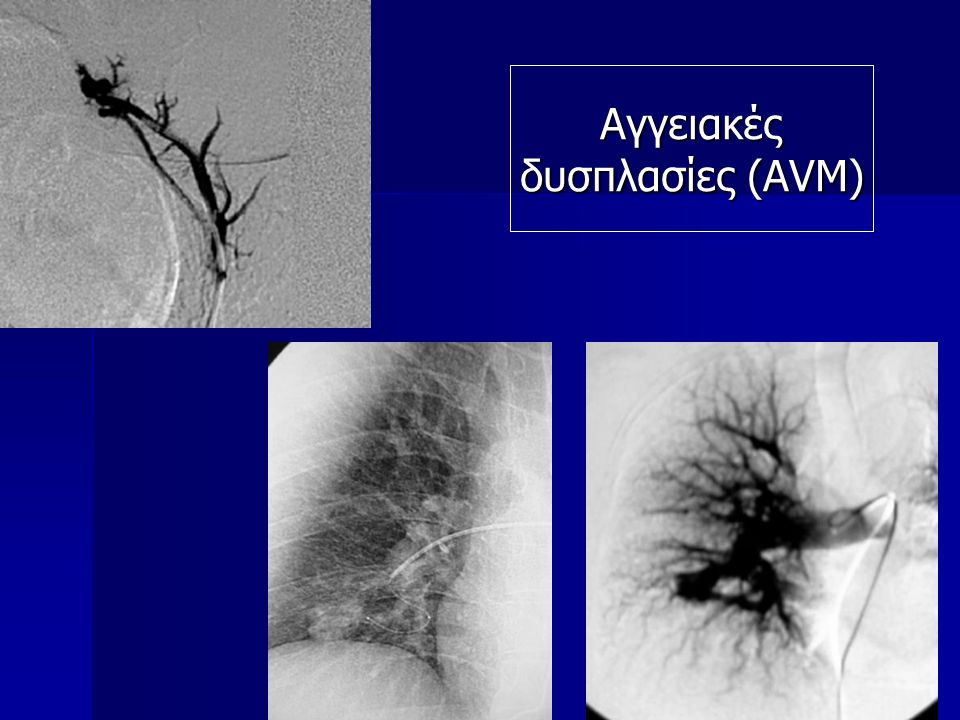 Αγγειακές δυσπλασίες (AVM)