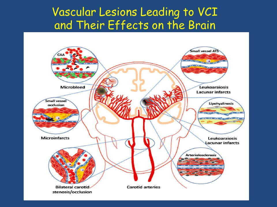 Vascular Lesions Leading to VCI and Their Effects on the Brain