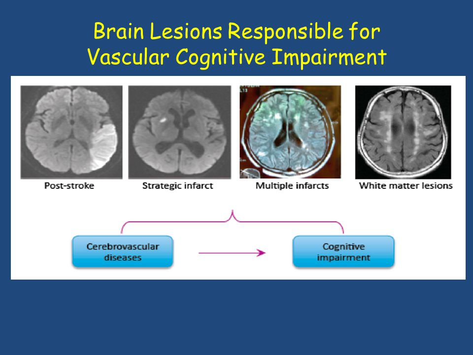 Brain Lesions Responsible for Vascular Cognitive Impairment