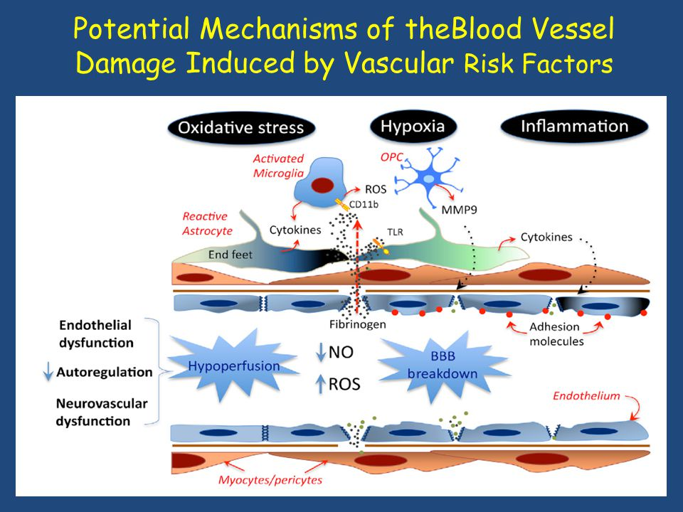 Potential Mechanisms of theBlood Vessel Damage Induced by Vascular Risk Factors