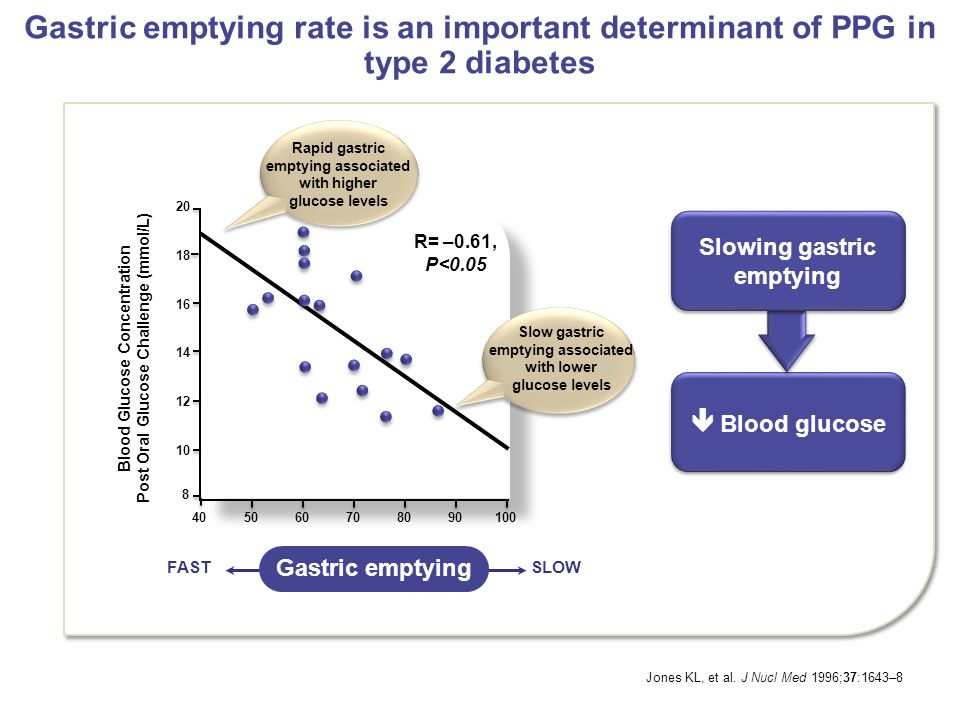 Gastric emptying rate is an important determinant of PPG in type 2 diabetes