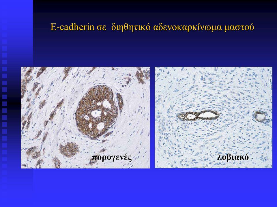 E-cadherin σε διηθητικό αδενοκαρκίνωμα μαστού