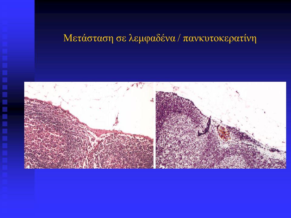 Μετάσταση σε λεμφαδένα / πανκυτοκερατίνη