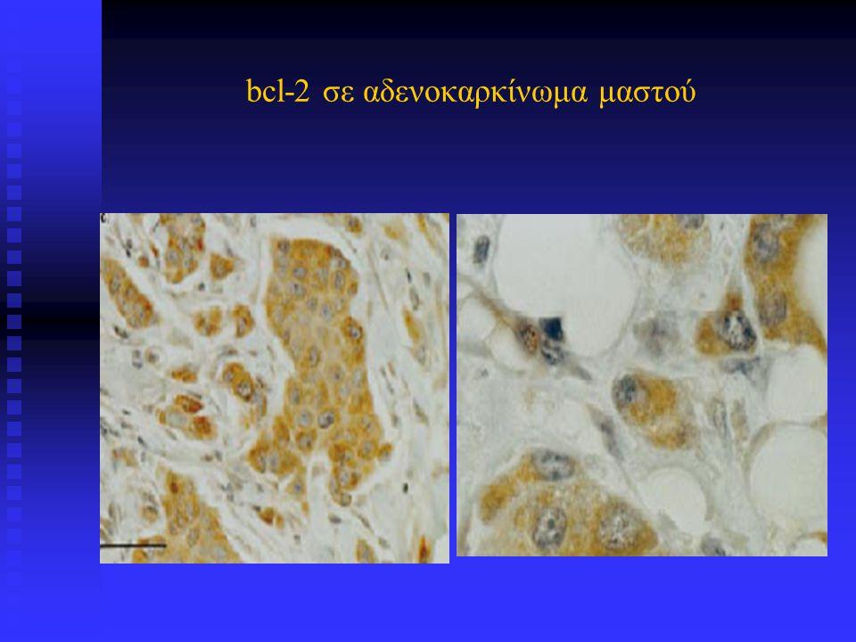 bcl-2 σε αδενοκαρκίνωμα μαστού