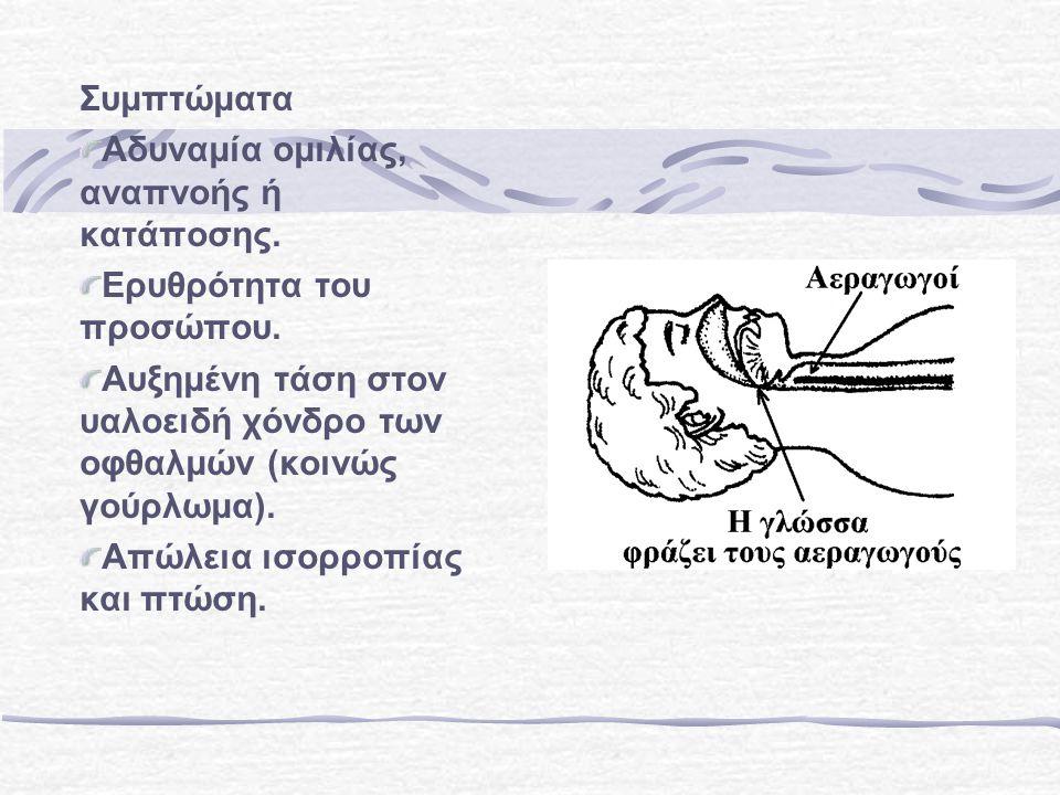 Συμπτώματα Αδυναμία ομιλίας, αναπνοής ή κατάποσης. Ερυθρότητα του προσώπου. Αυξημένη τάση στον υαλοειδή χόνδρο των οφθαλμών (κοινώς γούρλωμα).