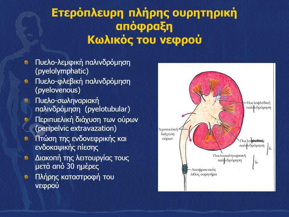 Ετερόπλευρη πλήρης ουρητηρική απόφραξη Κωλικός του νεφρού