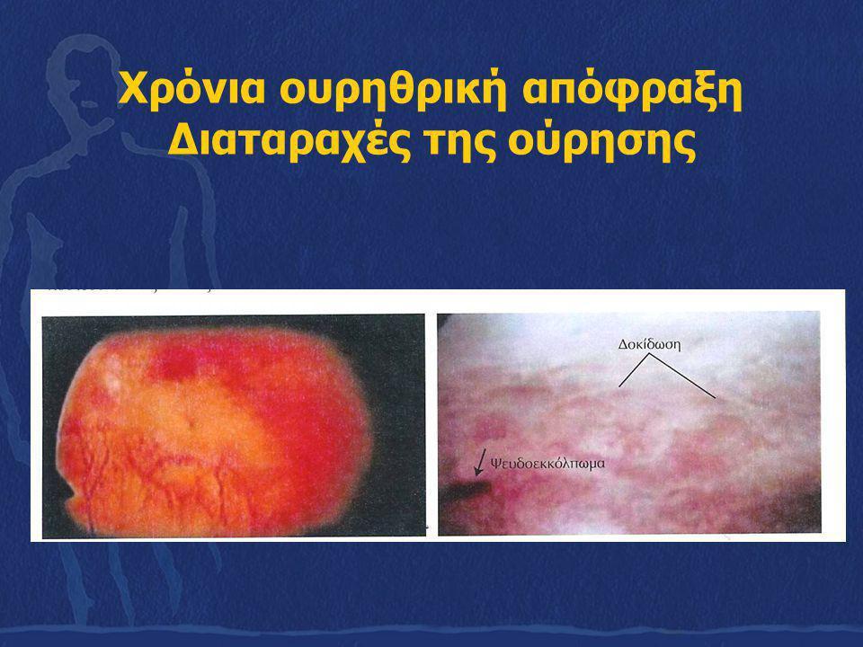 Χρόνια ουρηθρική απόφραξη Διαταραχές της ούρησης