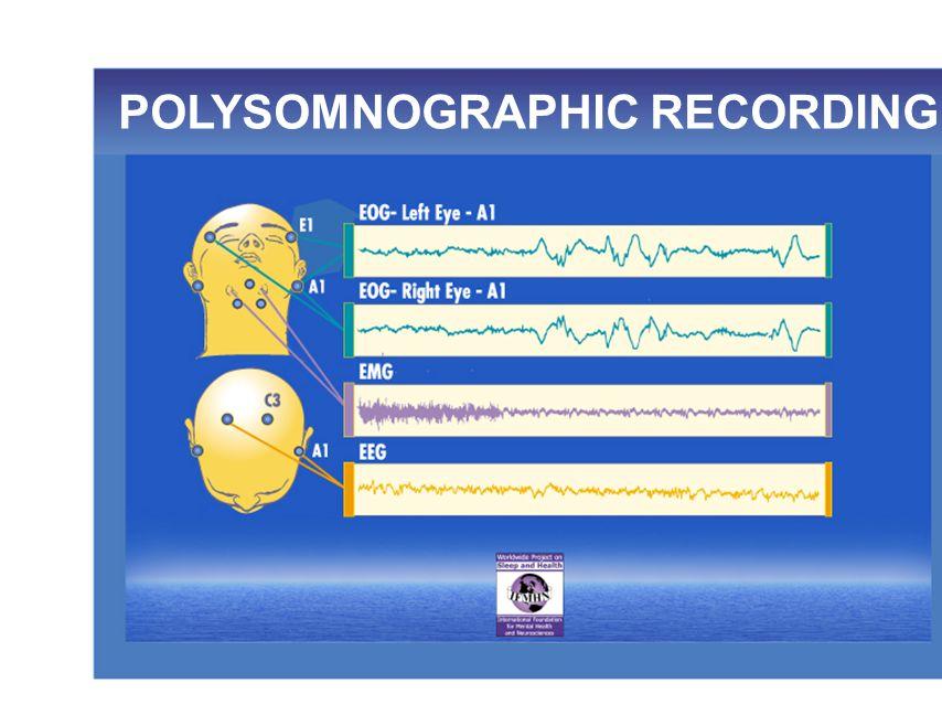 POLYSOMNOGRAPHIC RECORDING