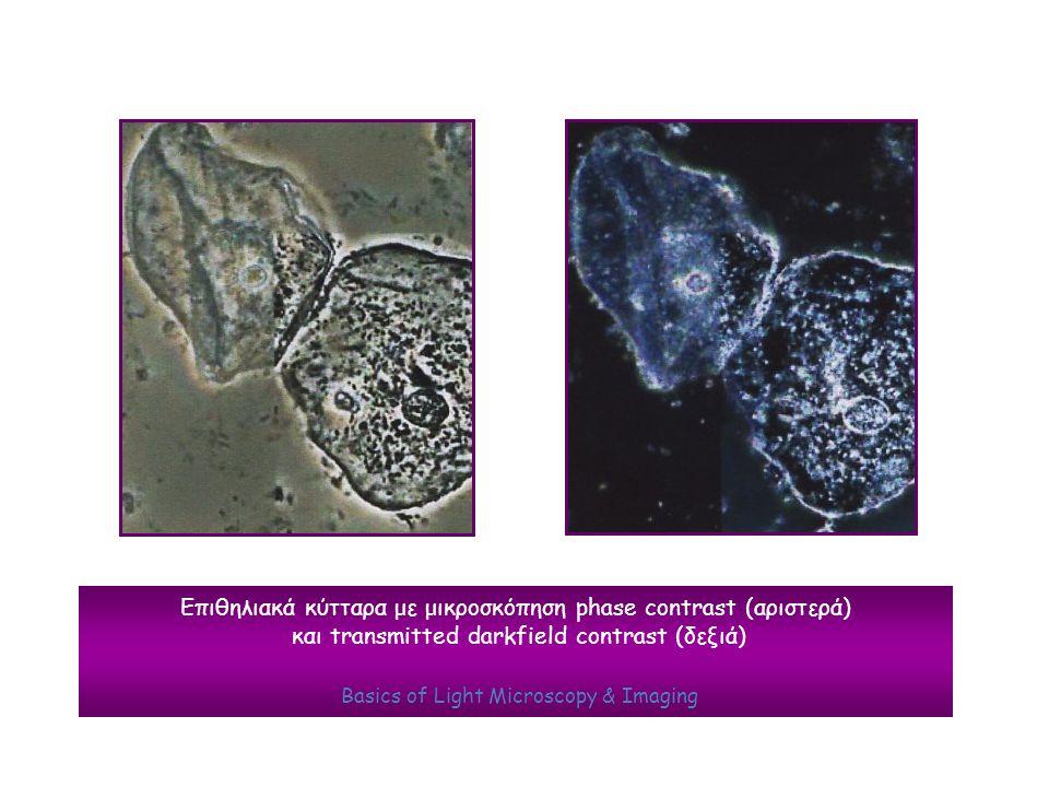 Επιθηλιακά κύτταρα με μικροσκόπηση phase contrast (αριστερά) και transmitted darkfield contrast (δεξιά) Basics of Light Microscopy & Imaging