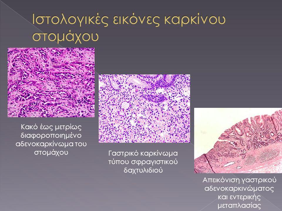 Ιστολογικές εικόνες καρκίνου στομάχου