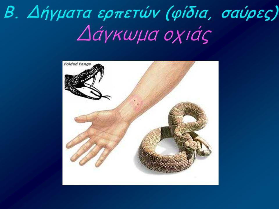 Β. Δήγματα ερπετών (φίδια, σαύρες) Δάγκωμα οχιάς