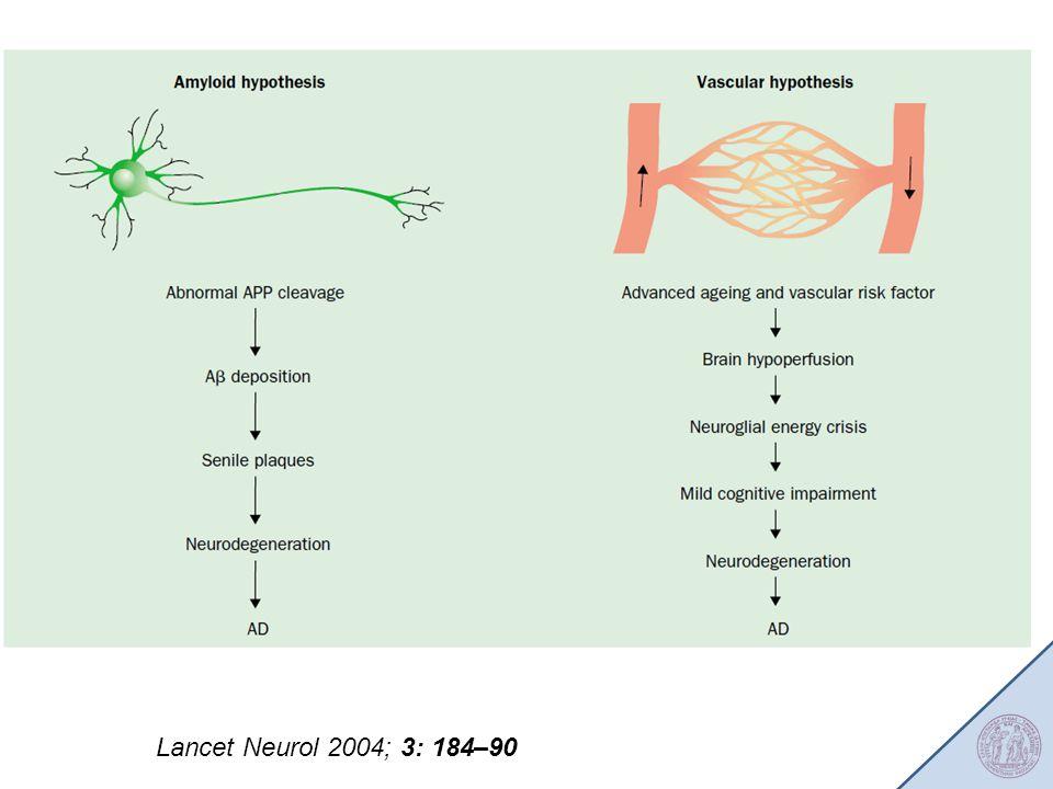Lancet Neurol 2004; 3: 184–90