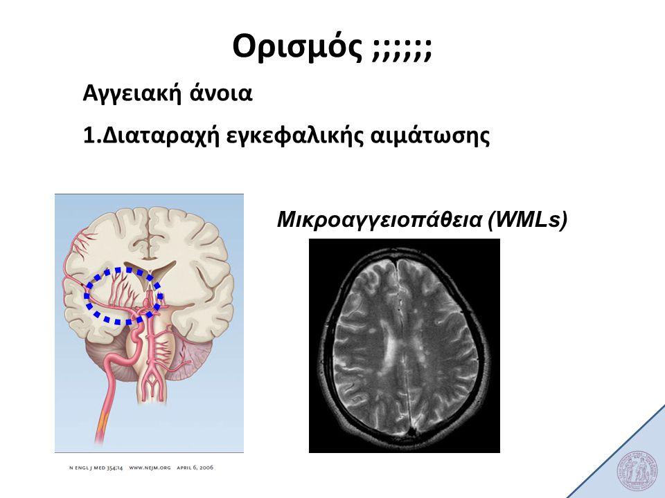 Ορισμός ;;;;;; Αγγειακή άνοια Διαταραχή εγκεφαλικής αιμάτωσης