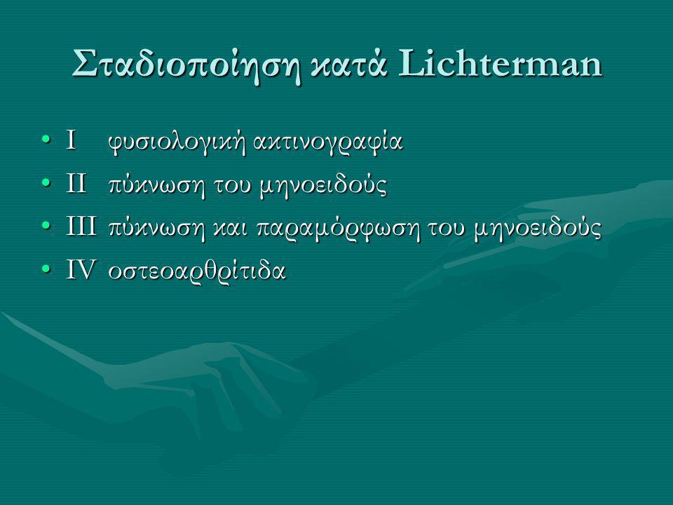 Σταδιοποίηση κατά Lichterman