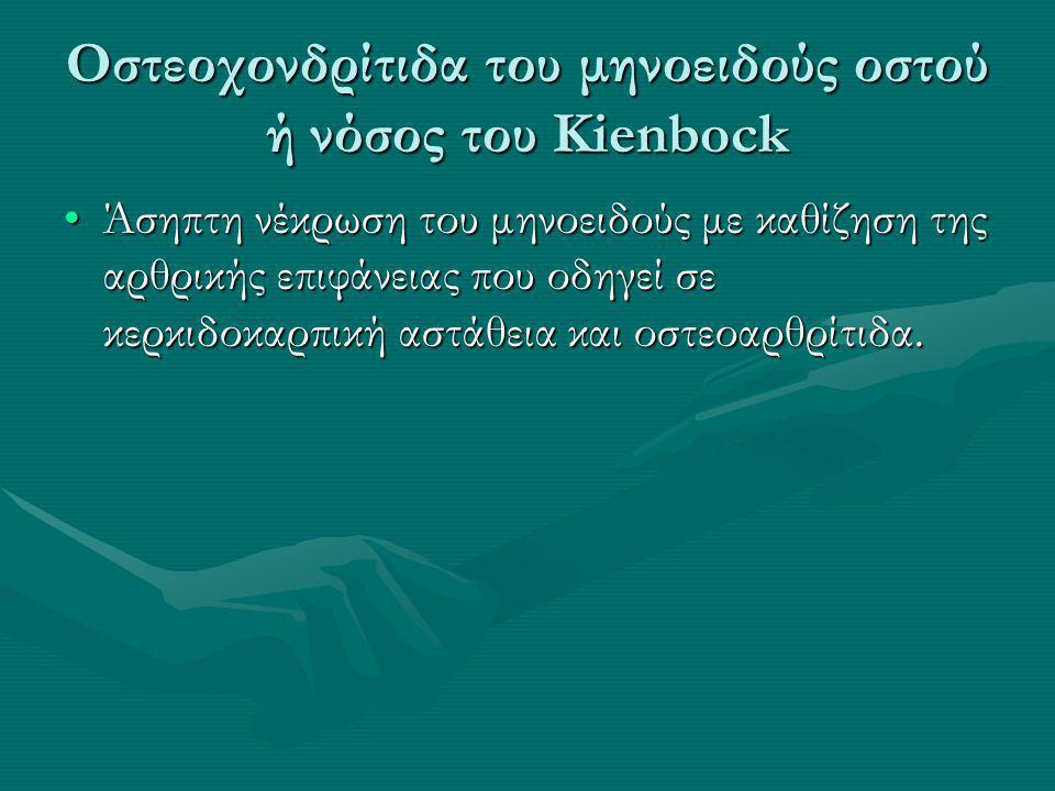 Οστεοχονδρίτιδα του μηνοειδούς οστού ή νόσος του Kienbock