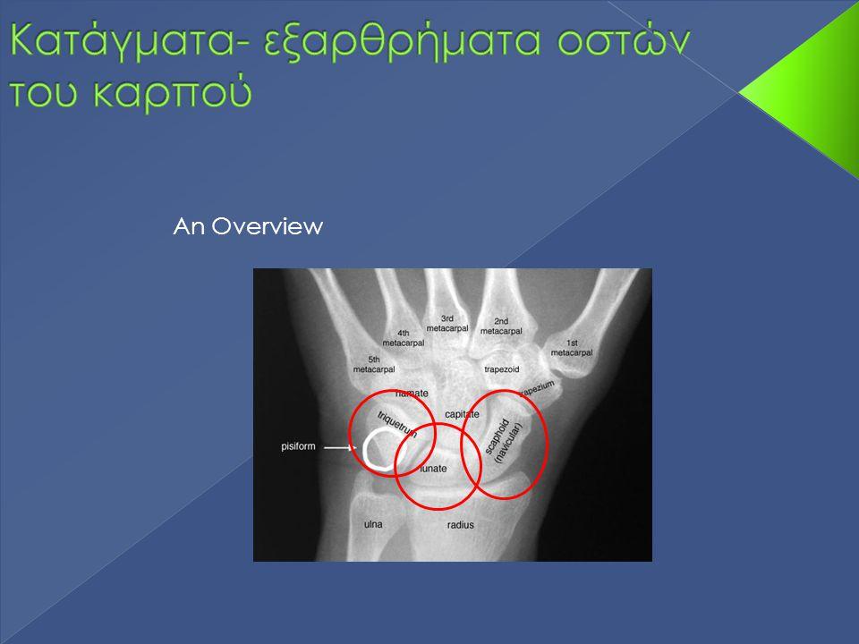 Κατάγματα- εξαρθρήματα οστών του καρπού