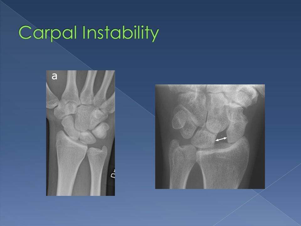 Carpal Instability Subluxation of the scaphoid bone with widening of the scapho-lunate joint.