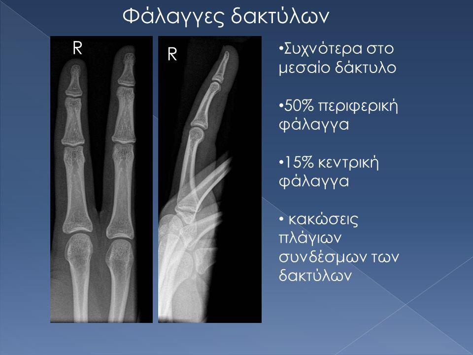 Φάλαγγες δακτύλων R R Συχνότερα στο μεσαίο δάκτυλο