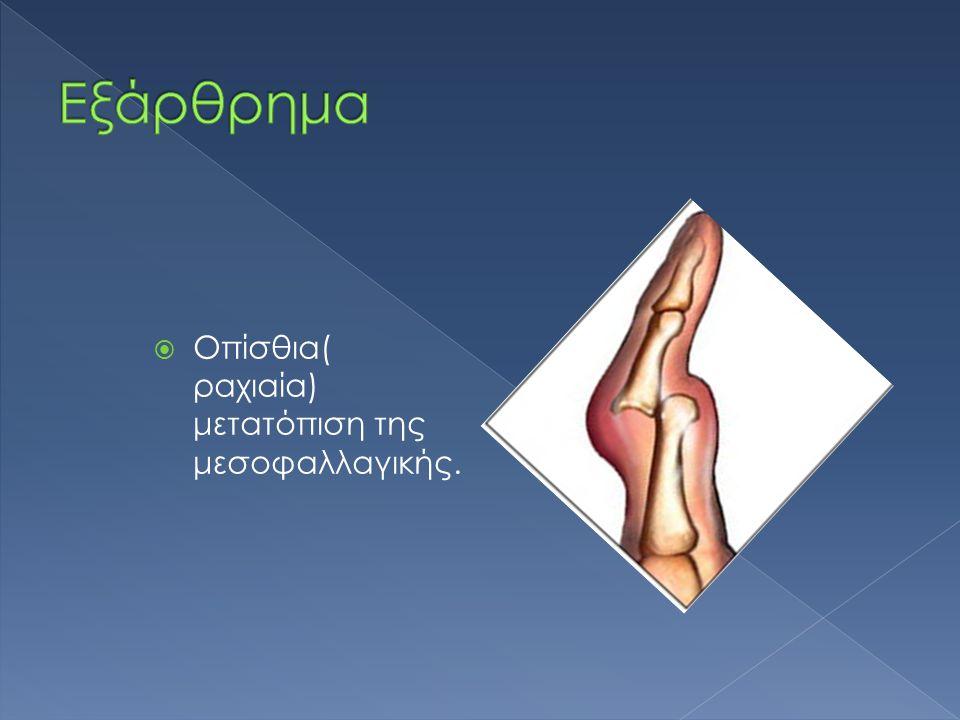 Εξάρθρημα Οπίσθια( ραχιαία) μετατόπιση της μεσοφαλλαγικής.