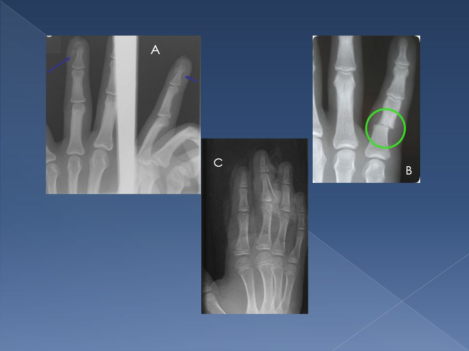 A C. B. Hands and finger fractures are normally stable. Require orthopaedic referral when they involve the articular surface.