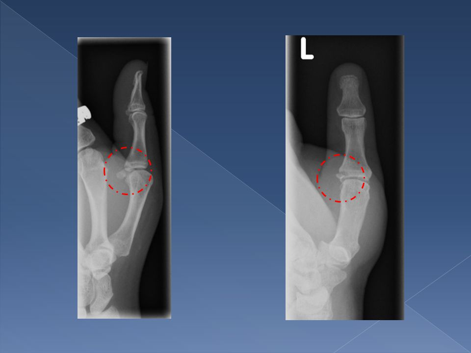 Report: There is an avulsion type fracture seen involving the base of the proximal phalynx of the first metacarpal at the insertion of the ulna collateral ligament seen.
