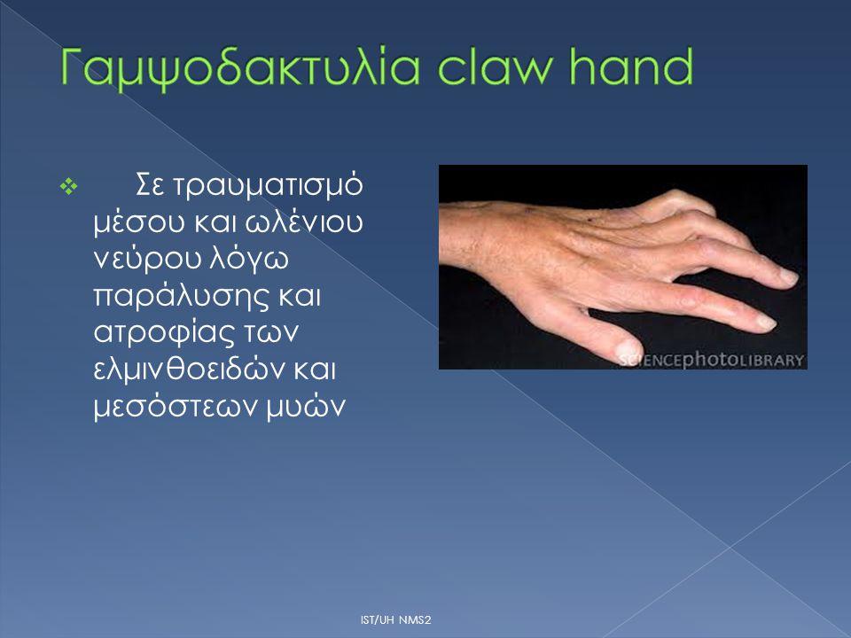 Γαμψοδακτυλία claw hand