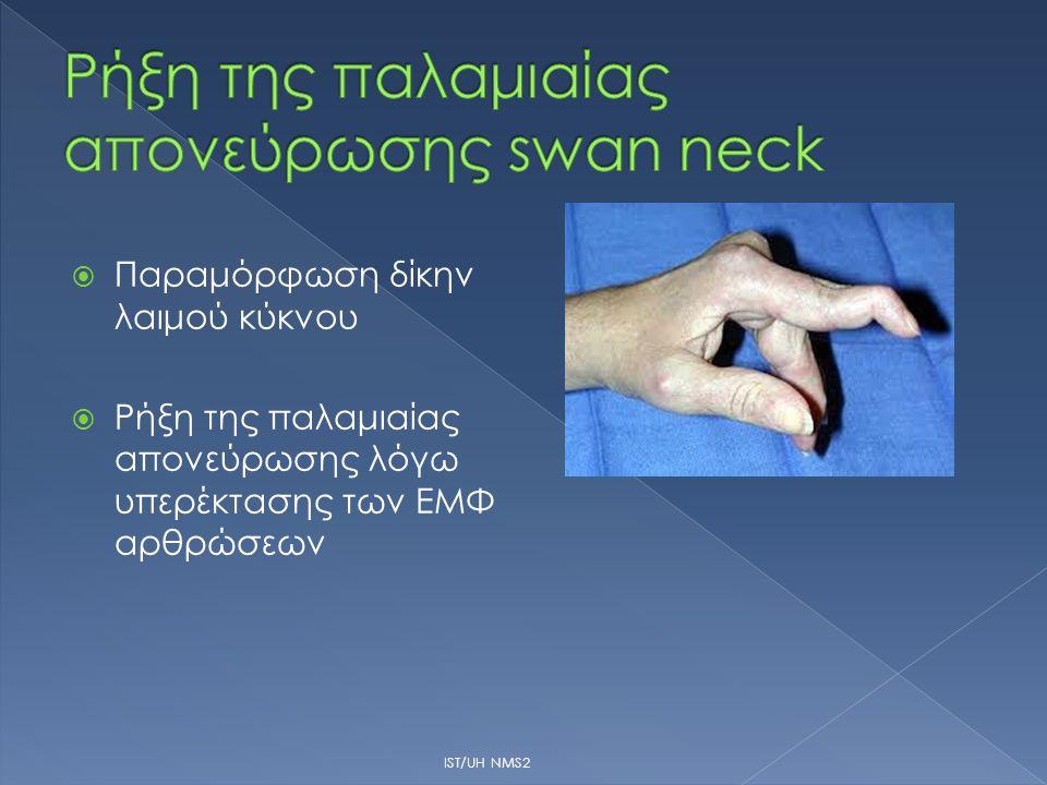 Ρήξη της παλαμιαίας απονεύρωσης swan neck