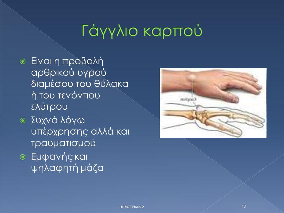 Γάγγλιο καρπού Είναι η προβολή αρθρικού υγρού διαμέσου του θύλακα ή του τενόντιου ελύτρου. Συχνά λόγω υπέρχρησης αλλά και τραυματισμού.
