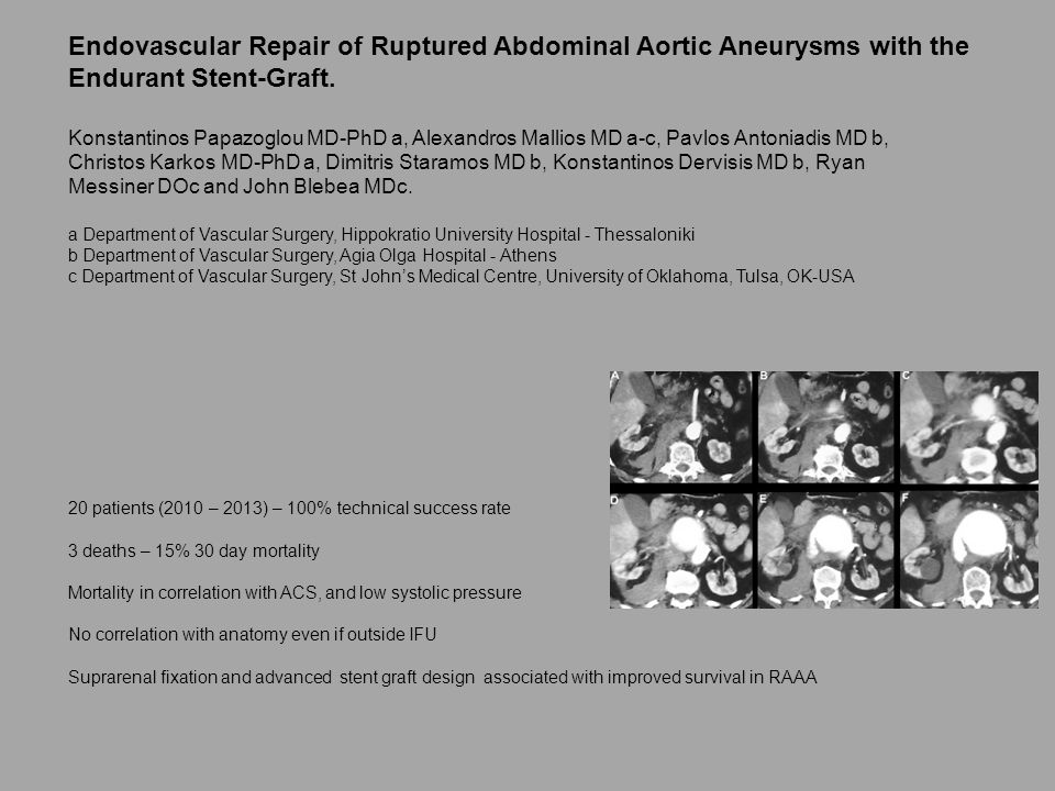 Endovascular Repair of Ruptured Abdominal Aortic Aneurysms with the