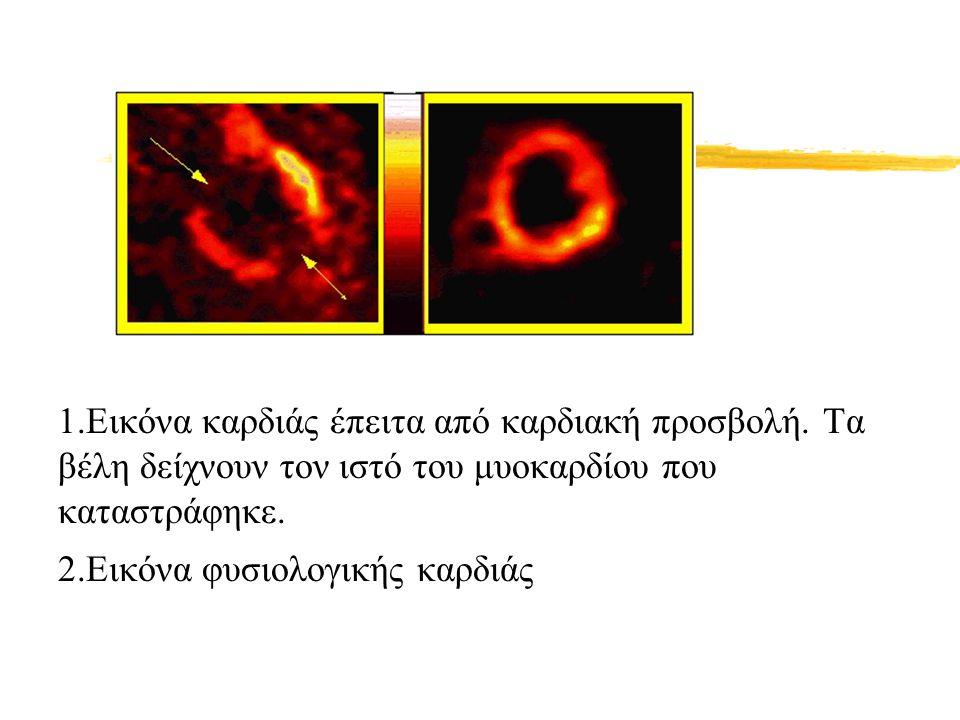 1. Εικόνα καρδιάς έπειτα από καρδιακή προσβολή