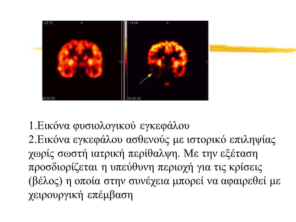 1. Εικόνα φυσιολογικού εγκεφάλου 2