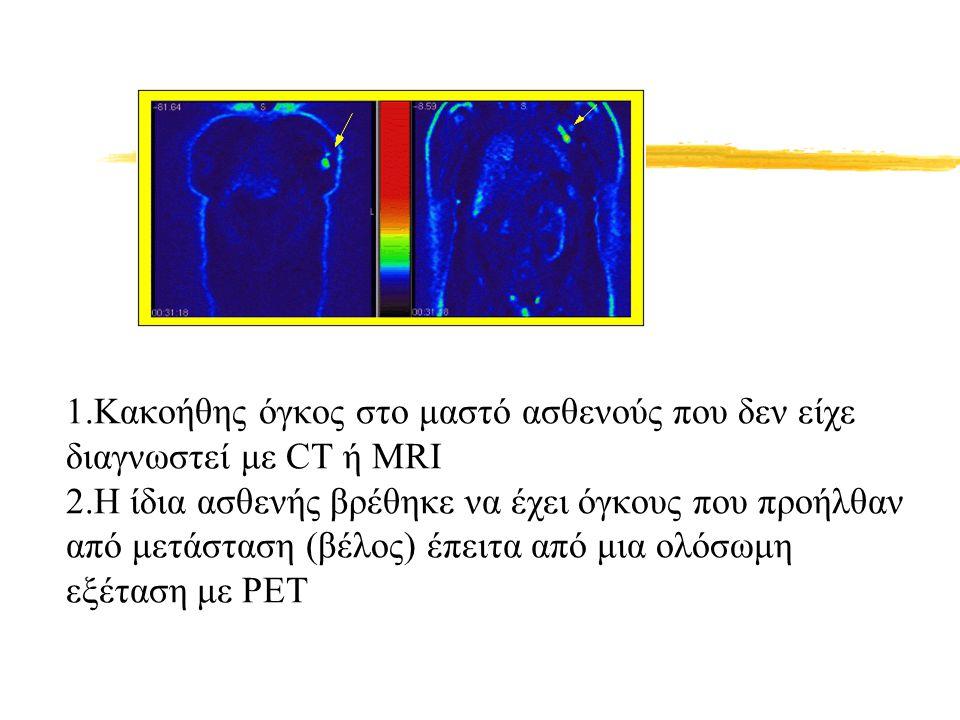 1.Κακοήθης όγκος στο μαστό ασθενούς που δεν είχε διαγνωστεί με CT ή MRI 2.Η ίδια ασθενής βρέθηκε να έχει όγκους που προήλθαν από μετάσταση (βέλος) έπειτα από μια ολόσωμη εξέταση με PET